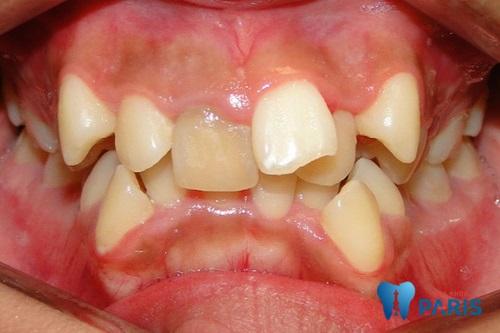 bệnh răng miệng răng mọc lệch