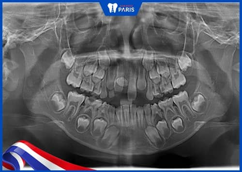 răng sữa không rụng do không có mầm răng vĩnh viễn