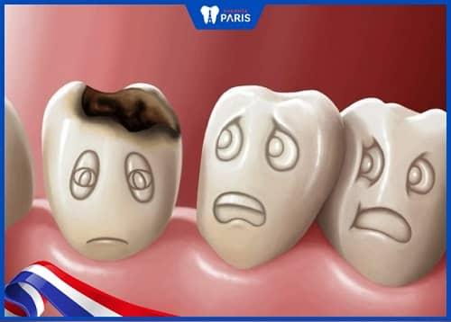 răng sữa không rụng có ảnh hưởng gì không