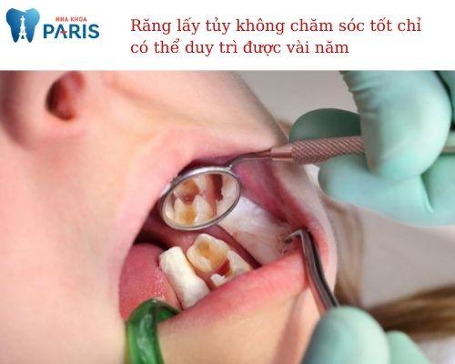 răng lấy tủy có tồn tại được hết đời o