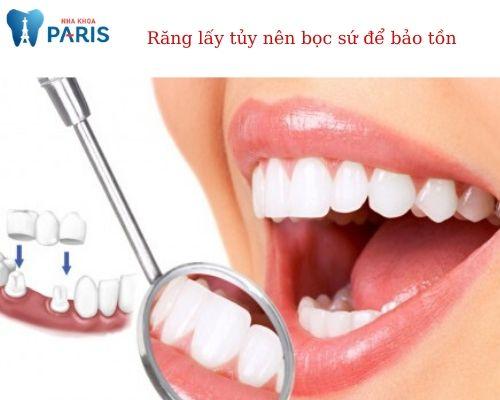 răng lấy tủy có nên bọc lại