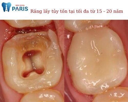 răng đã lấy tủy tồn tại được bao lâu