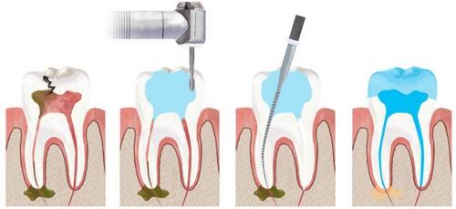 Răng hàm bị sâu phải làm sao điều trị hiệu quả TẬN GỐC!! 3