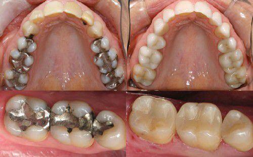 Đau nhức răng hàm làm sao để chữa ngay tại nhà? 4