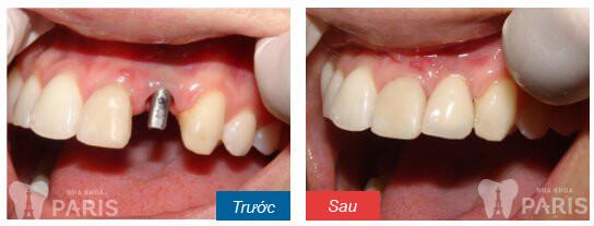 Bọc răng sứ thẩm mỹ an toàn với CN hiện đại 9