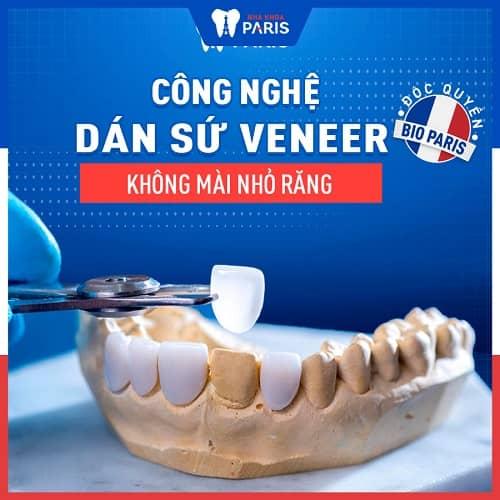 bọc răng sứ làm răng dài ra