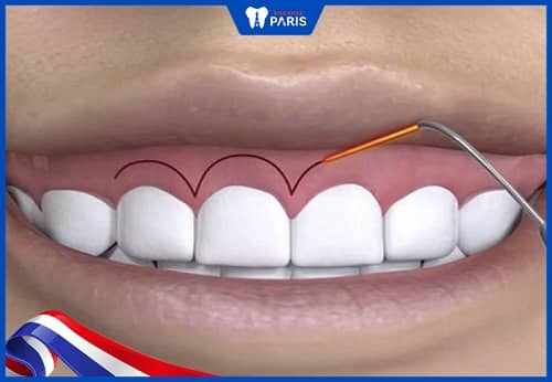 cách làm răng dài ra