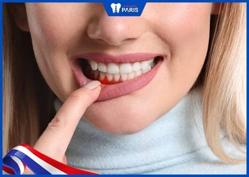 răng mọc dài ra do tụt lợi