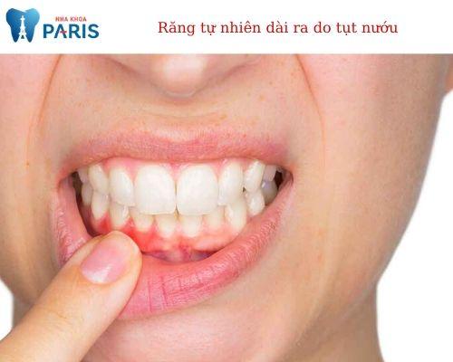 răng người có dài ra không?