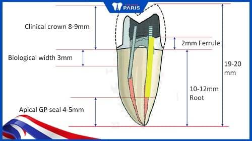 chiều dài của răng