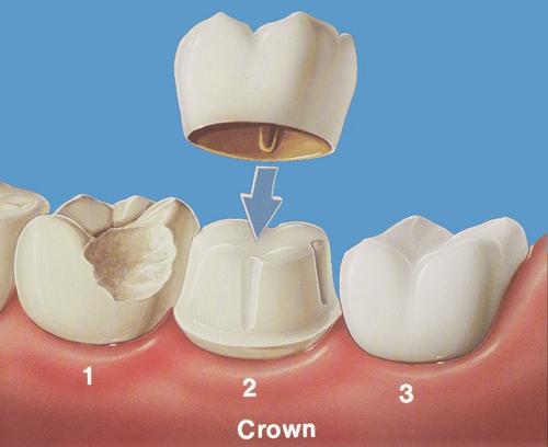 Răng sâu nên bọc sứ hay trám răng Inlay/Onlay 1
