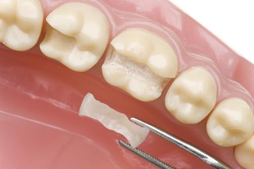 Răng sâu nên bọc sứ hay trám răng Inlay/Onlay 2