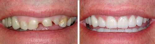 Bị gãy răng có nên trồng răng sứ không 2