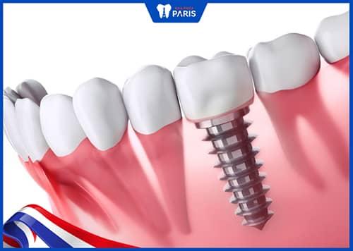 Cấy ghép răng Implant để khắc phục mất răng