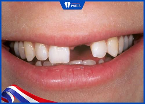 Không nên để mất răng lâu ngày