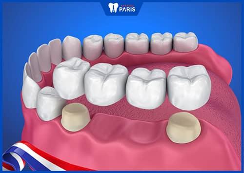 Làm cầu răng sứ để khắc phục mất răng