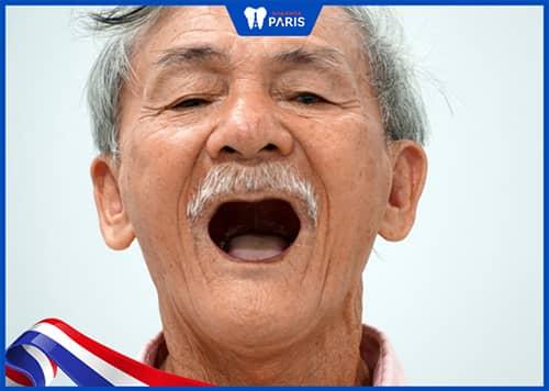 Mất răng do yếu tố tuổi tác