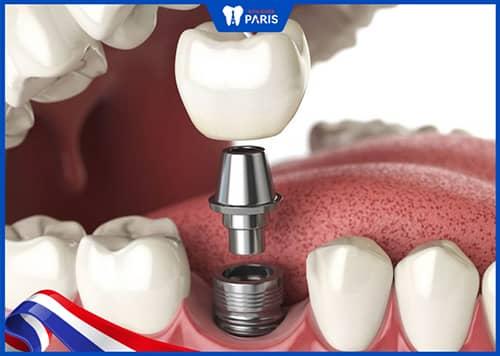Mất răng lâu năm có trồng lại được không?