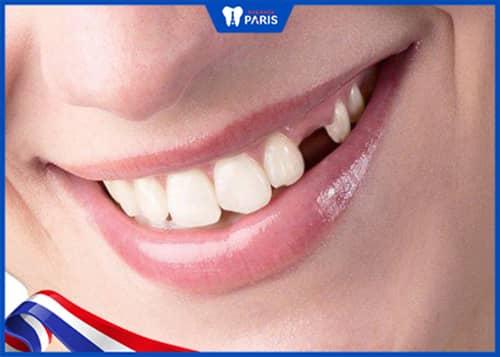 Những tác hại, hậu quả, ảnh hưởng Khi mất răng lâu năm