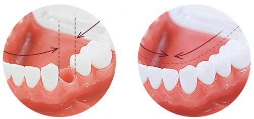 mọc thiếu răng xử lý bằng cách trồng răng