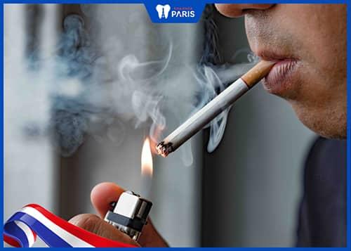 mất răng do Thói quen sử dụng thuốc lá