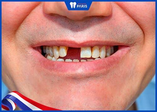 mất răng do Yếu tố di truyền
