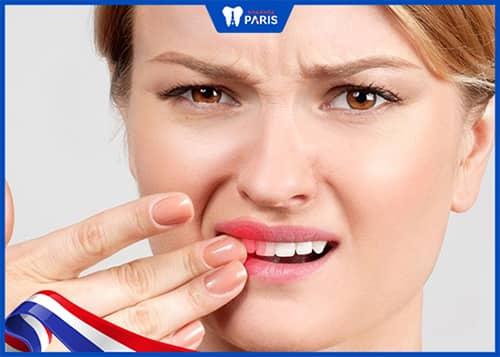mất răng do tai nạn hoặc va đập mạnh