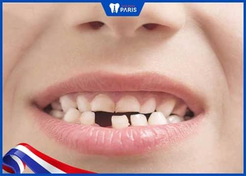 mọc thiếu răng ảnh hưởng tới thẩm mỹ