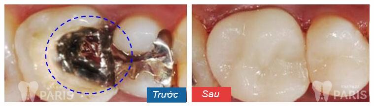 Trám răng thẩm mỹ Laser Tech phục hình răng hiệu quả