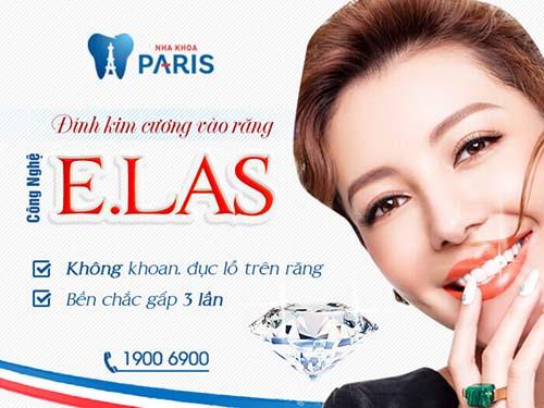 Đính đá vào răng có hại không tại Nha khoa Paris