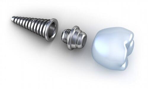 Trồng răng Implant giá bao nhiêu tiền? 1
