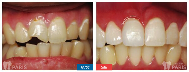 Trám răng thẩm mỹ Laser Tech cho răng sứt mẻ