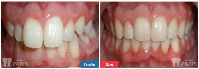 Niềng răng ở đâu Tốt, Uy Tín và Đảm Bảo chất lượng nhất hiện nay? 3