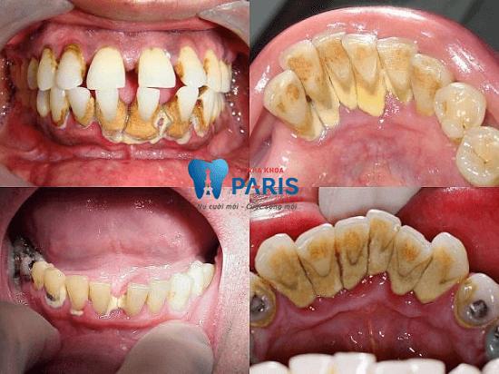Viêm chân răng có mủ - Nguyên nhân và cách trị TẬN GỐC!!! 2