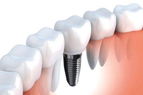 Cấy ghép răng implant là gì và có những ưu điểm gì vượt trội? 1