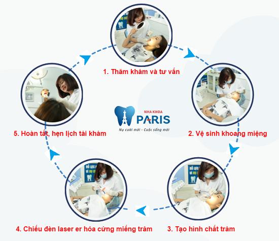 Quy trình trám răng thẩm mỹ tại Nha khoa Paris