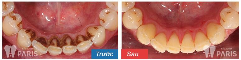 Lấy cao răng có tốt không, có an toàn không? 3