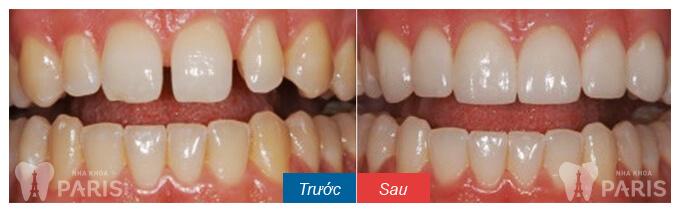 Trám răng thẩm mỹ Laser Tech cho răng thưa