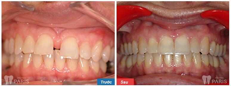 Niềng răng mắc cài 3M UGSL chỉnh nha an toàn, hiệu quả cao 6