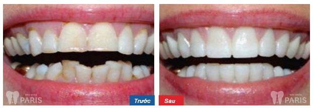 Niềng răng mắc cài 3M UGSL chỉnh nha an toàn, hiệu quả cao 7