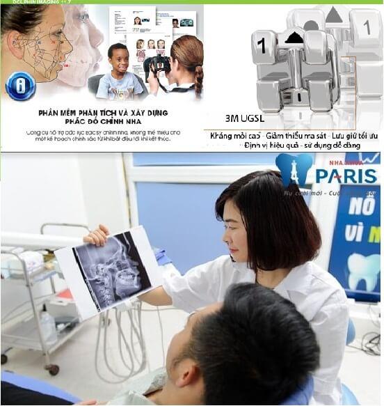 Niềng răng mắc cài 3M UGSL chỉnh nha an toàn, hiệu quả cao 3