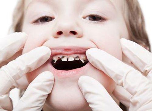 Kết quả hình ảnh cho sâu răng cho trẻ