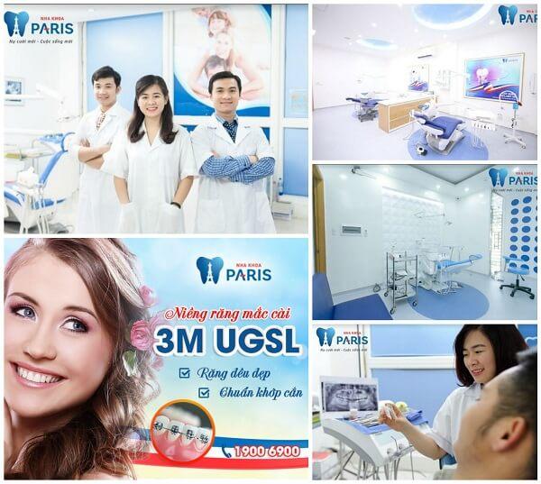 Niềng răng mắc cài 3M UGSL chỉnh nha an toàn, hiệu quả cao 9