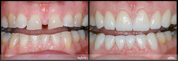 Trám răng Laser Tech - răng thưa hở kẽ 2