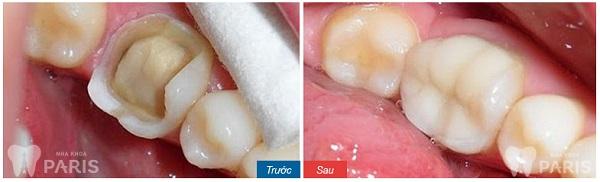 Trám răng Laser Tech răng sâu 2