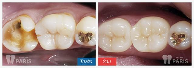 Hàn trám răng Laser Tech răng sâu