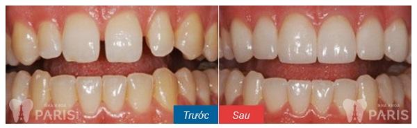 Trám răng Laser Tech với răng thưa hở kẽ