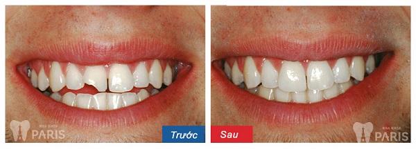 Trám răng Laser Tech răng sứt mẻ