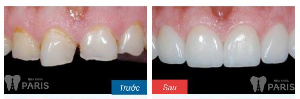 Trám răng Laser Tech có bền không