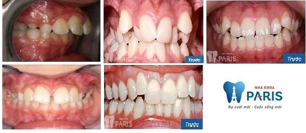Niềng răng mắc cài 3M UGSL chỉnh nha an toàn, hiệu quả cao 2